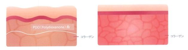 韓国式美容鍼のメカニズム