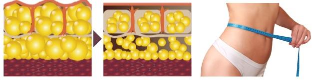 脂肪溶解注射 FatXのイメージ